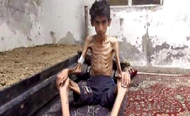 Snowbound and starving: In Madaya 23 people have died of starvation since December 1.