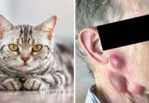 Elderly Man Catches Rare Life-threatening Disease From His Pet Cat