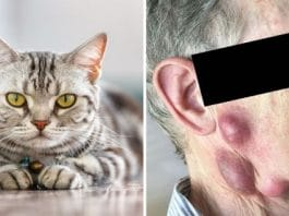 Elderly Man Catches Rare Life-threatening Disease From His Pet Cat